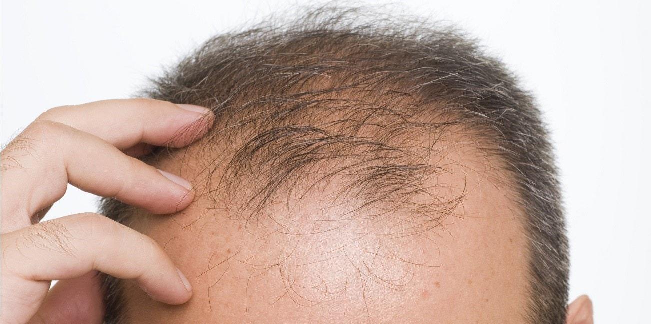 Hair-Loss-Rejuvenation
