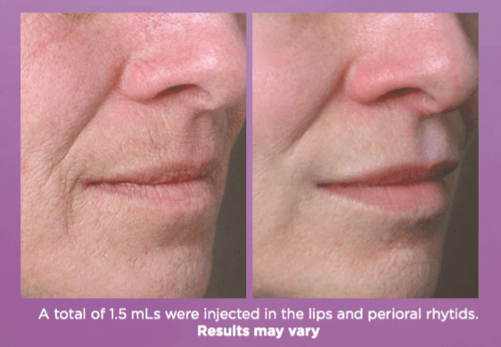 Juvederm-Volbella-Before-and-After