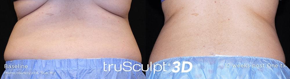 truSculpt-3D-2