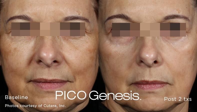 PICO genesis b&a 2